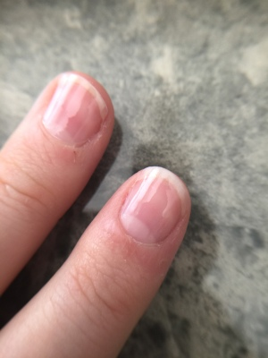 Natural looking Nails - Nail Treatment